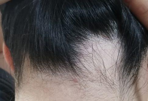 円形脱毛症とは AGAとの違いや治療法について