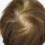 びまん性脱毛症とは 治療方法や特徴について