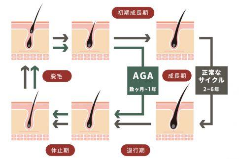 AGAになった場合のヘアサイクル