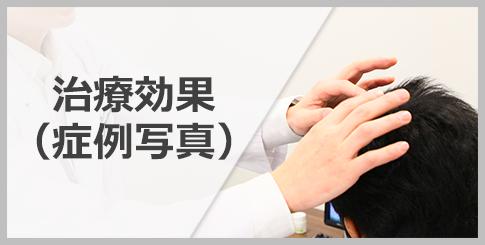 銀座総合美容クリニック(AGA相談の銀クリ) 治療効果(症例写真)