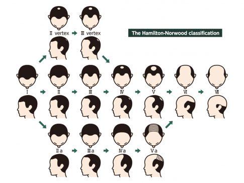 ハミルトン・ノーウッド分類