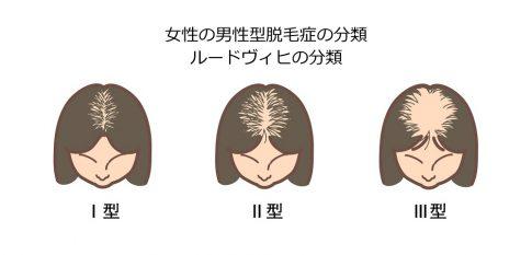 FAGA(女性型男性型脱毛症)のルードヴィヒ分類