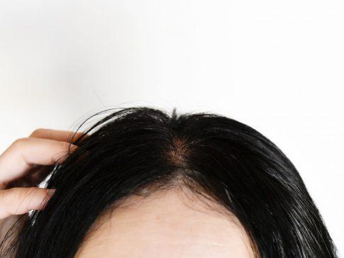 FPHL(女性型脱毛症)とは? FAGAとの違い