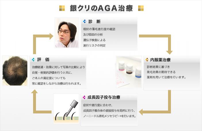 銀座総合美容クリニックのAGA治療